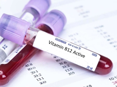 Vitamin B-12 Test Prices in India