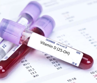 Vitamin-D Test Prices in India
